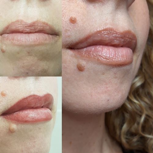 avant aprés maquillage permanent lèvres