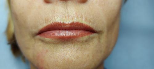 maquillage permanent lèvres avignon